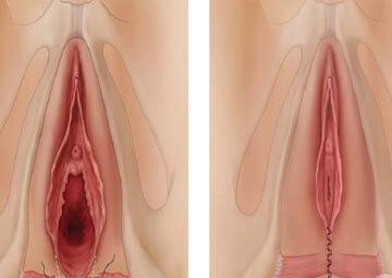Hình ảnh màng trinh su khi phẫu thuật